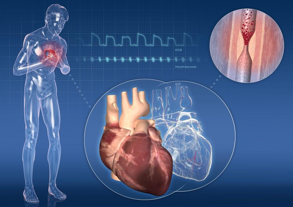 angina pectorală dureri articulare