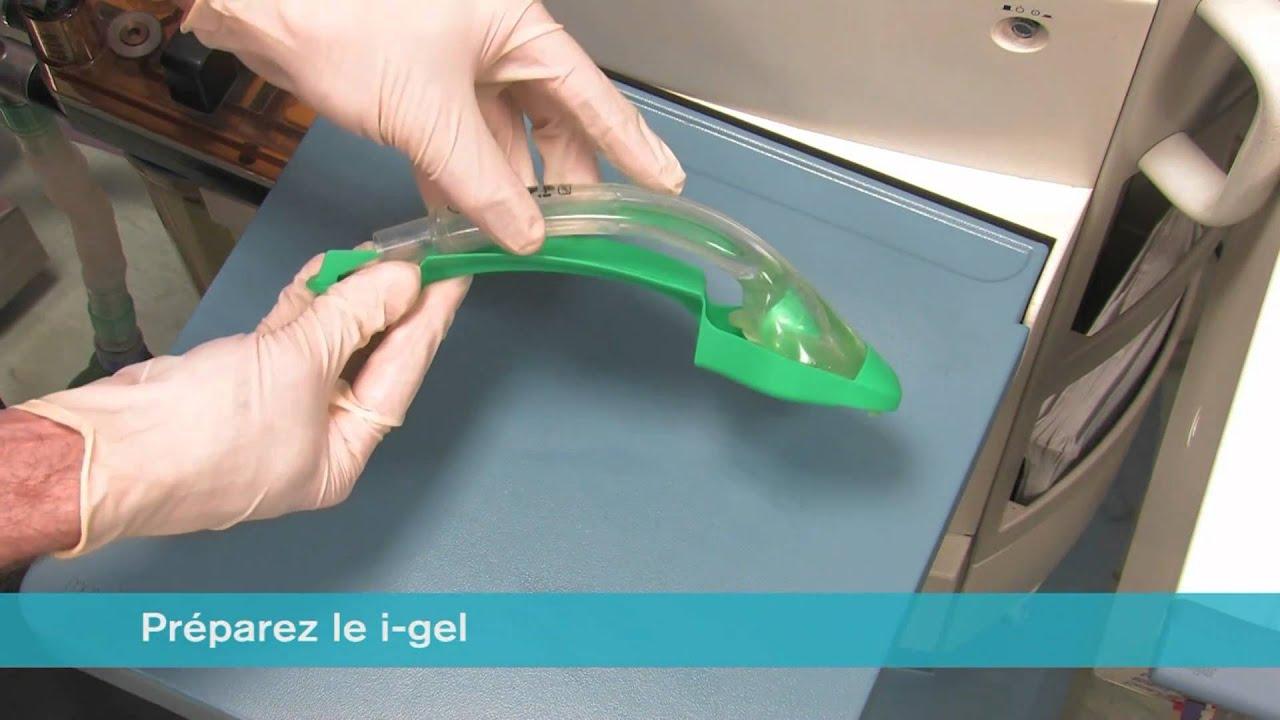 Prepararea articulațiilor de gel, Bara principală