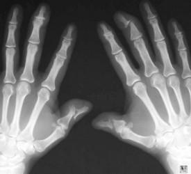 artrita pe falangele degetelor
