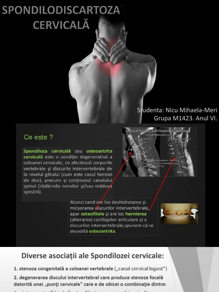 Medicina regenerativa a cartilajului | baremi.ro