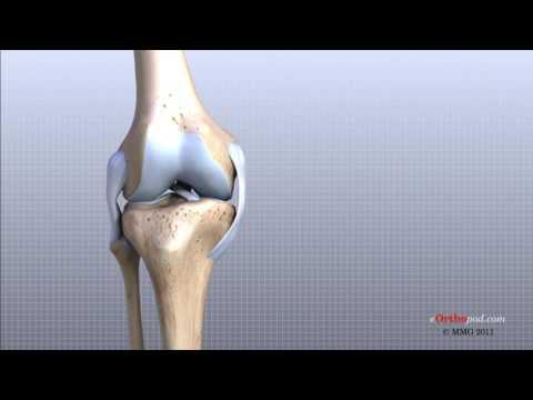care este diferența dintre artroza și artrita mâinilor Andrei Kurpatov Osteocondroză Remediu