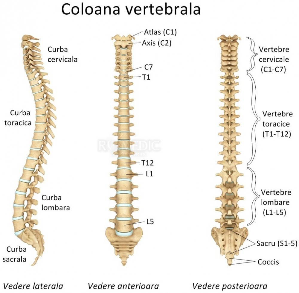 Durerile coloanei vertebrale: rahialgia si radiculalgia