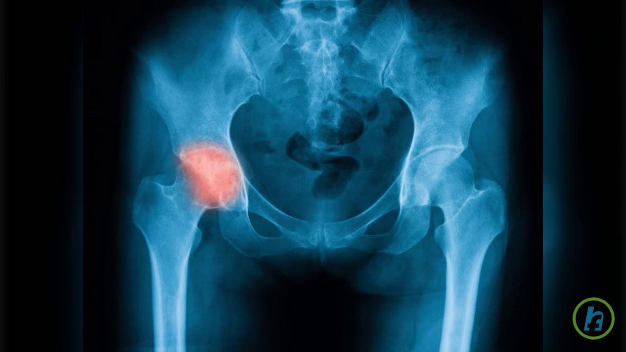 cel mai bun medicament cu condroitină tratamentul articulației genunchiului cu teraflex