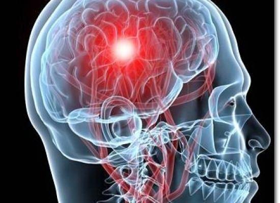 cum să tratezi un accident vascular cerebral articular