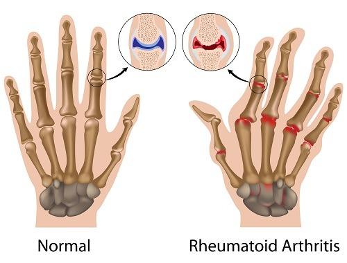 artrita reumatoida forma degetului