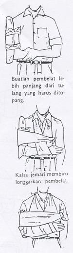 Ceea Ce Cauzează Amorțeală În Mâna Și Mâna Dreaptă, Articulațiile jumătății drepte a corpului doare