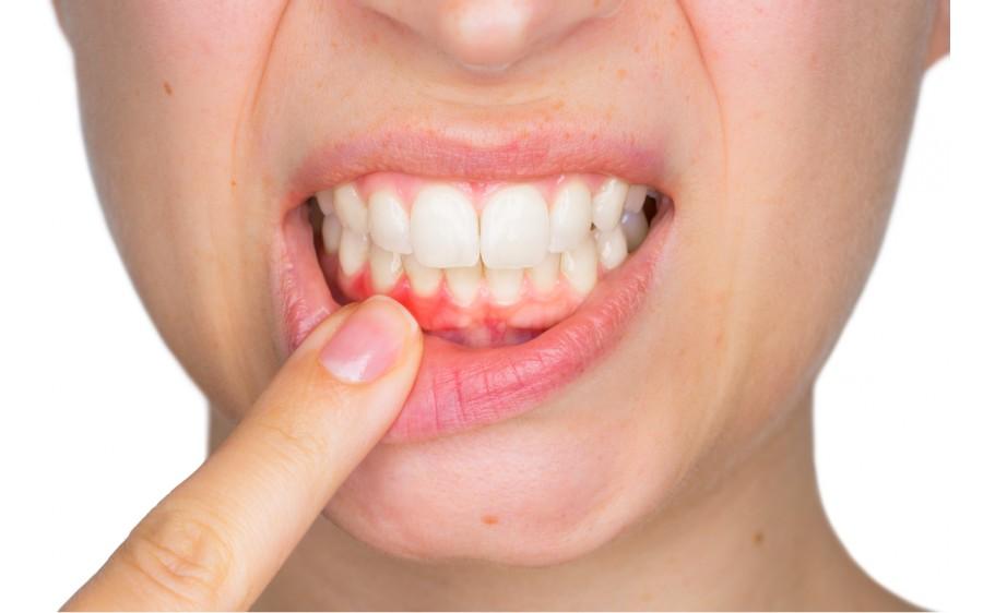 dureri articulare ale gingiei preparate intramusculare pentru tratamentul articular