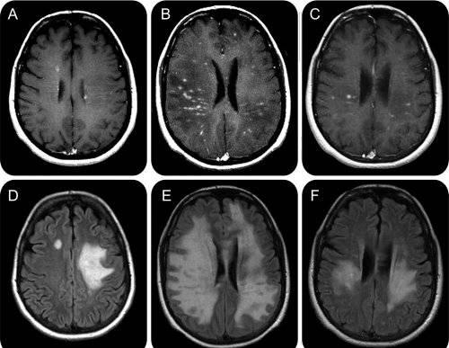 Durere în articulația șoldului cu scleroză multiplă. Afectiuni Archive - Page 10 of 11 - Kinetic