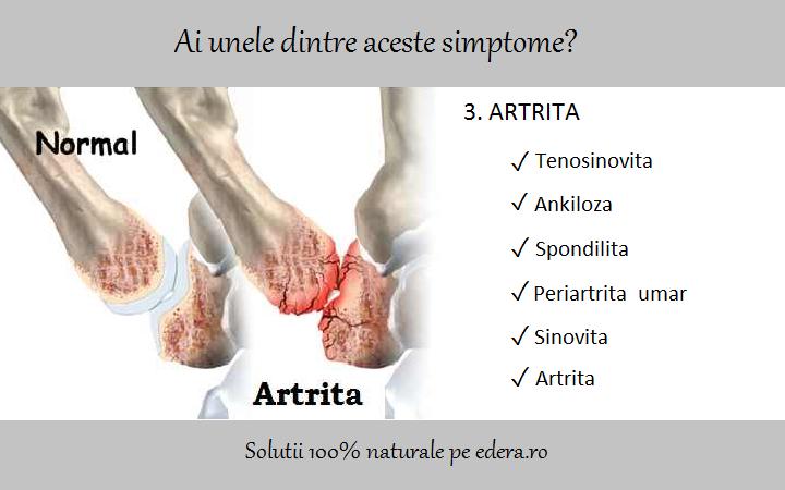 inflamația tendoanelor simptomelor periartritei genunchiului