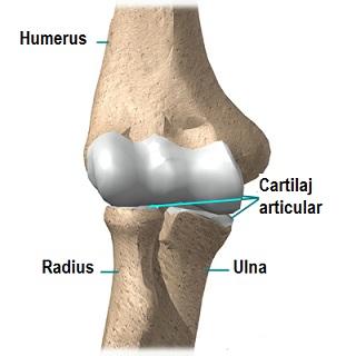 cum să tratezi durerea articulației șoldului cum să tratezi când articulațiile sunt dureroase