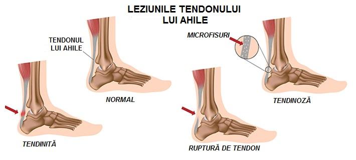 cum să tratezi leziunile la genunchi unguent bun pentru articulațiile picioarelor