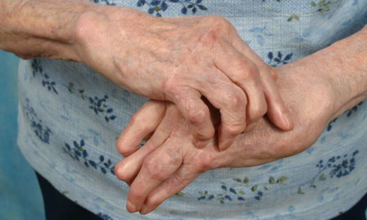 Unde să tratezi artroza și artrita
