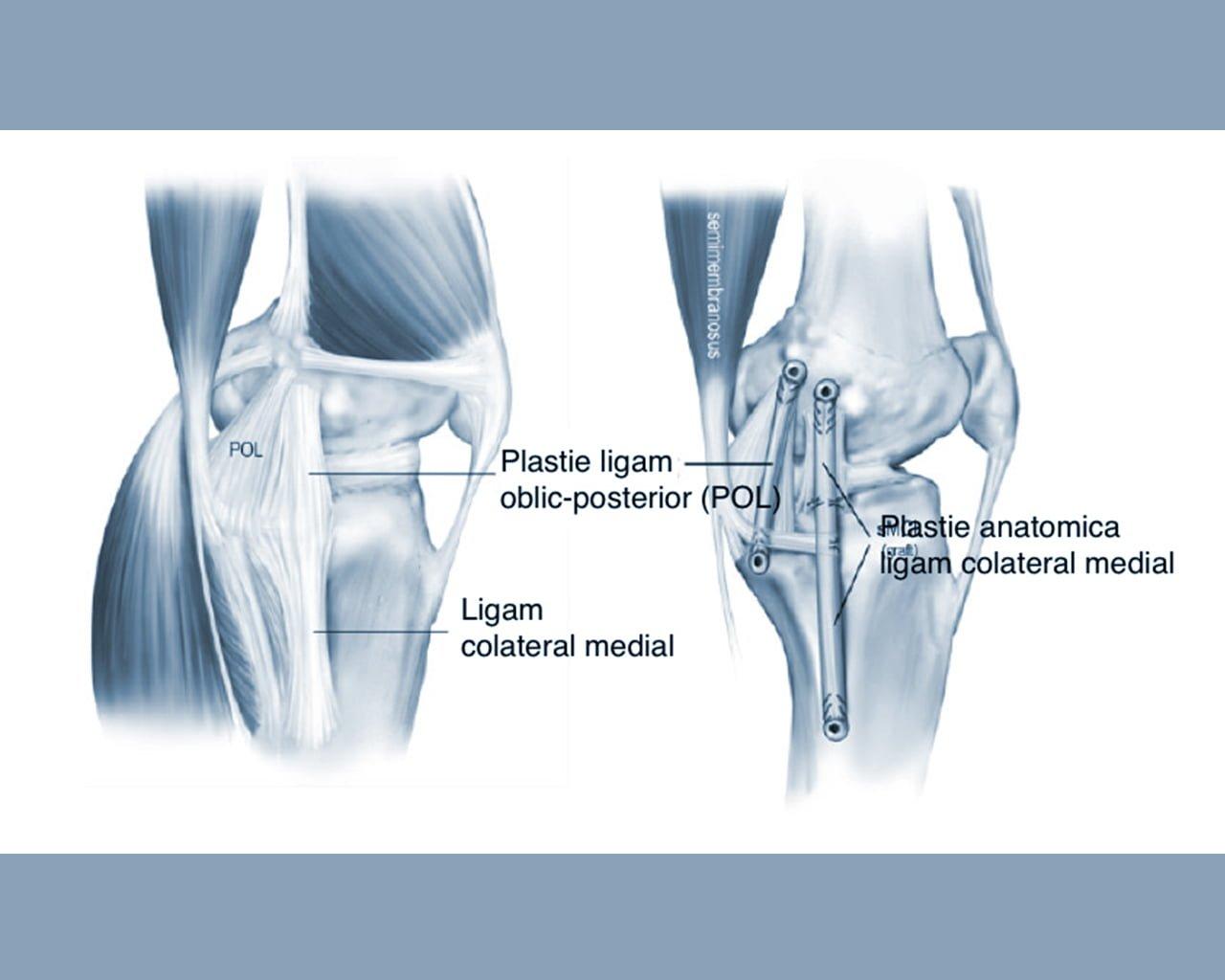 dureri articulare ischemice tratament articular în kumertau
