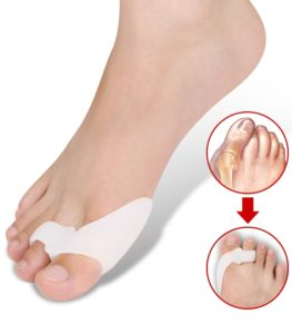 bump pe articulația piciorului cum să tratezi