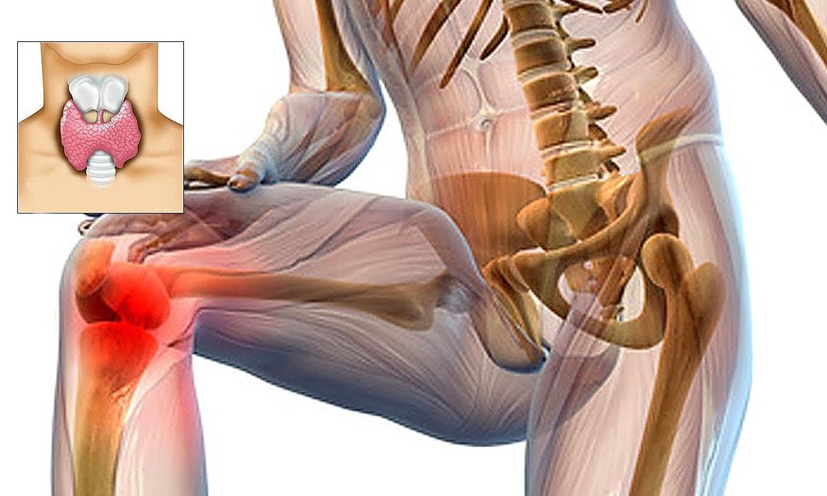 Sorry, we're doing some work on the site - Poate răni articulațiile din glanda tiroidă