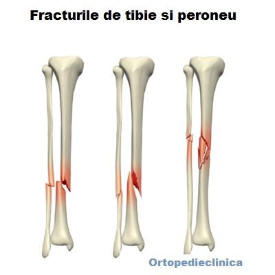 Tratamentul fracturii gleznei închise. Cum recunosti o fractura | baremi.ro