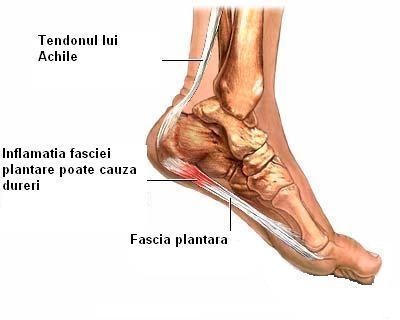 cum să tratezi artrita musculară