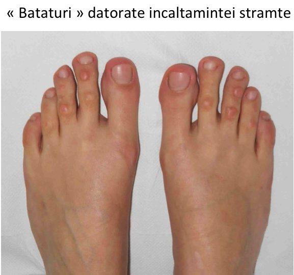 Faceti durerile de degete la picioare tratament De exemplu,