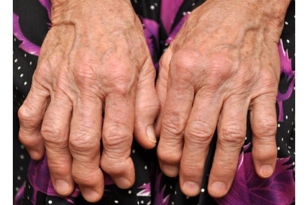 artrita articulației interfalangiene proximale 911 recenzii de balsam comun