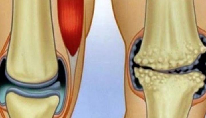 Remediu chinezesc pentru durerea genunchiului