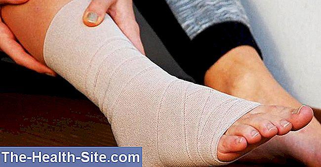 care este deteriorarea ligamentelor articulației gleznei dureri musculare la nivelul articulațiilor cotului