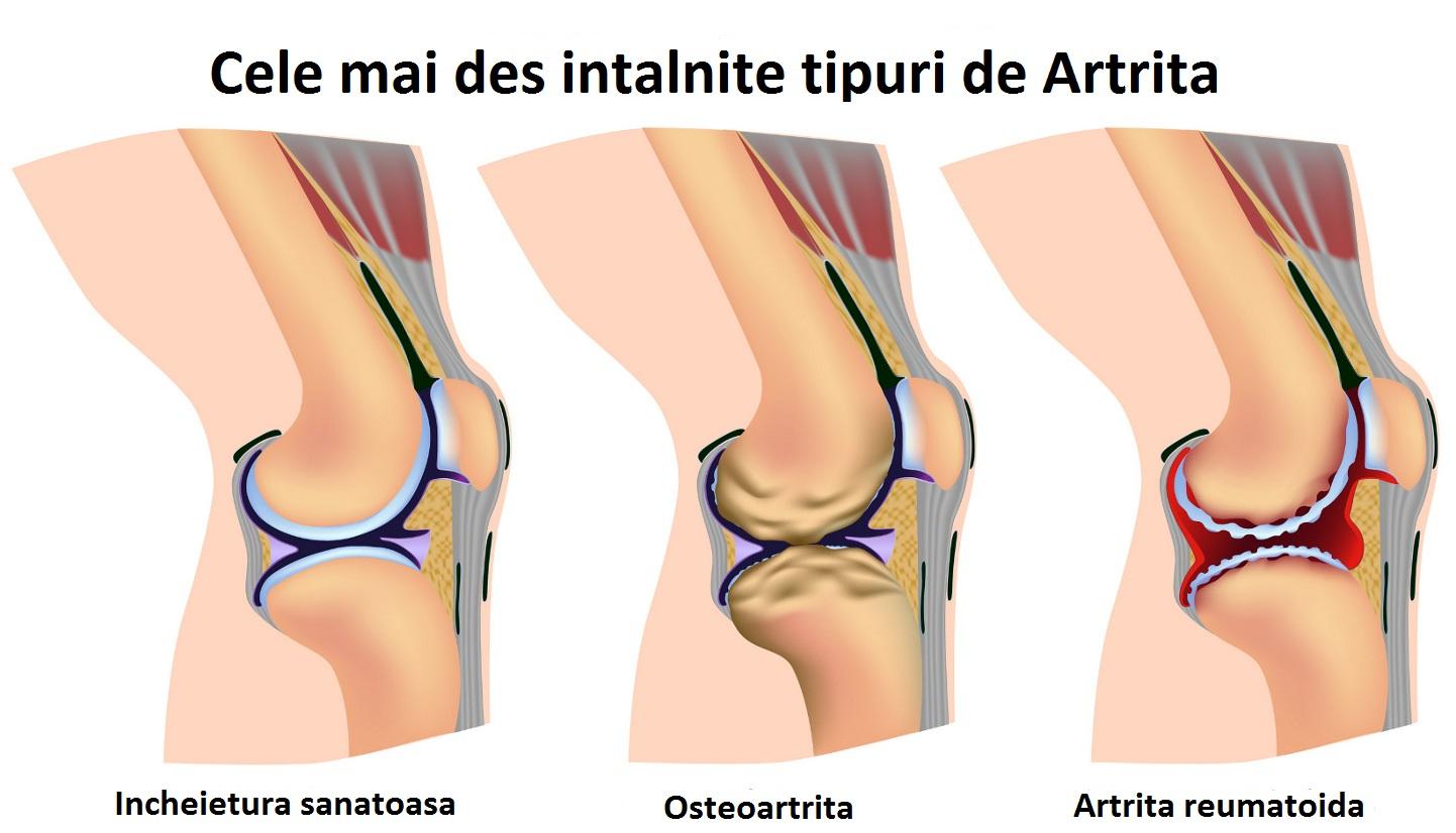 trata artrita reumatoida a picioarelor