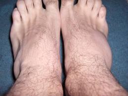 cremă articulară după luxație artroza tratamentului articulației genunchiului 2 comentarii
