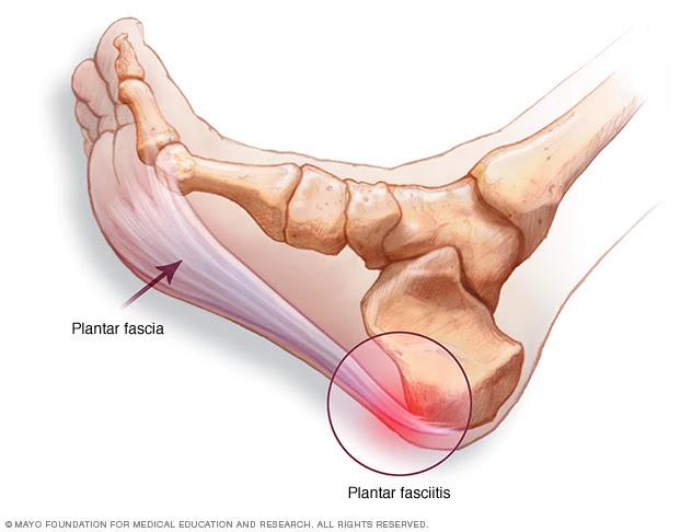 articulația picioarelor doare și călcâiul