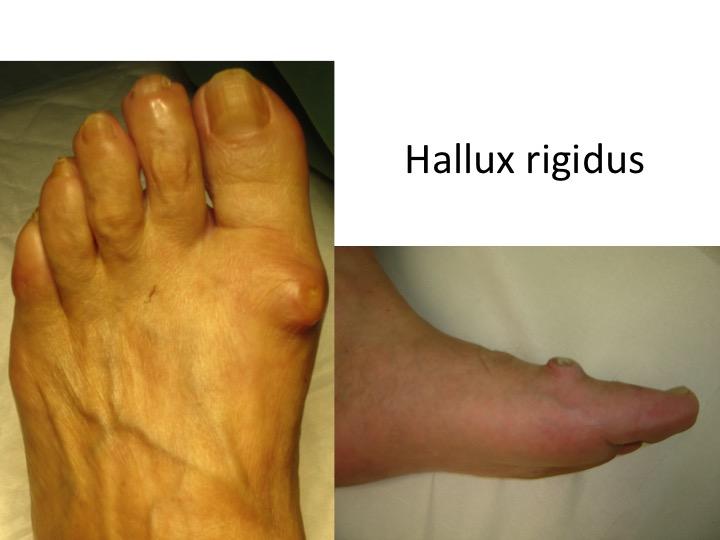 tratamentul artrozei artritei piciorului