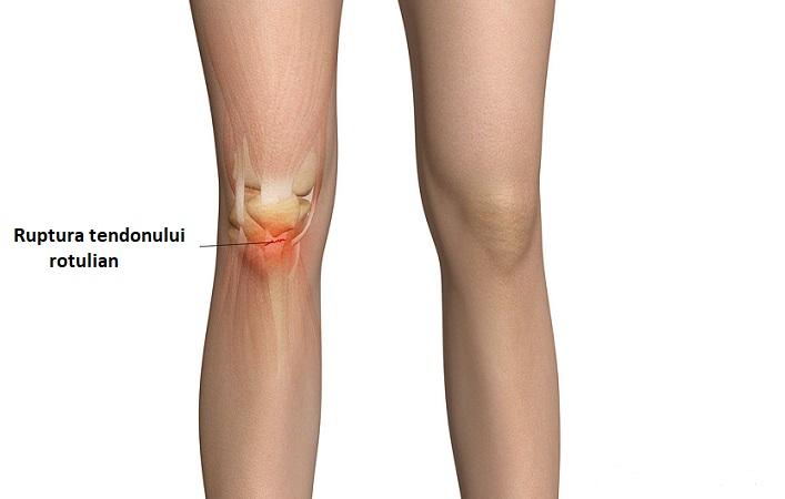 tratamentul rupturii tendonului genunchiului antidepresive pentru durere în articulații și mușchi