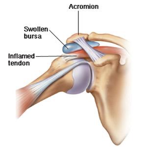 tratamentul bursitei lichidului articulației cotului apare din nou