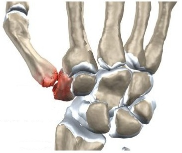 articulație în degetul mare