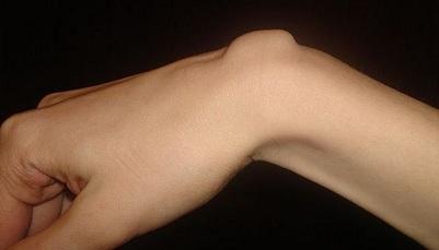 Am 35 de articulații foarte rănite - Afecțiuni - Recomandări - Aliphia