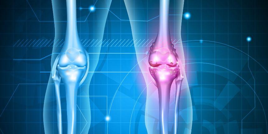 Cum poti trata osteoartrita