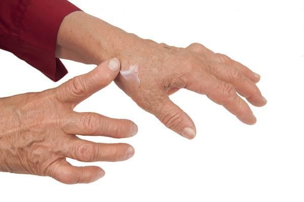 Problemele articulației pumnului, Provoacă inflamația articulației tratamentului degetelor mari