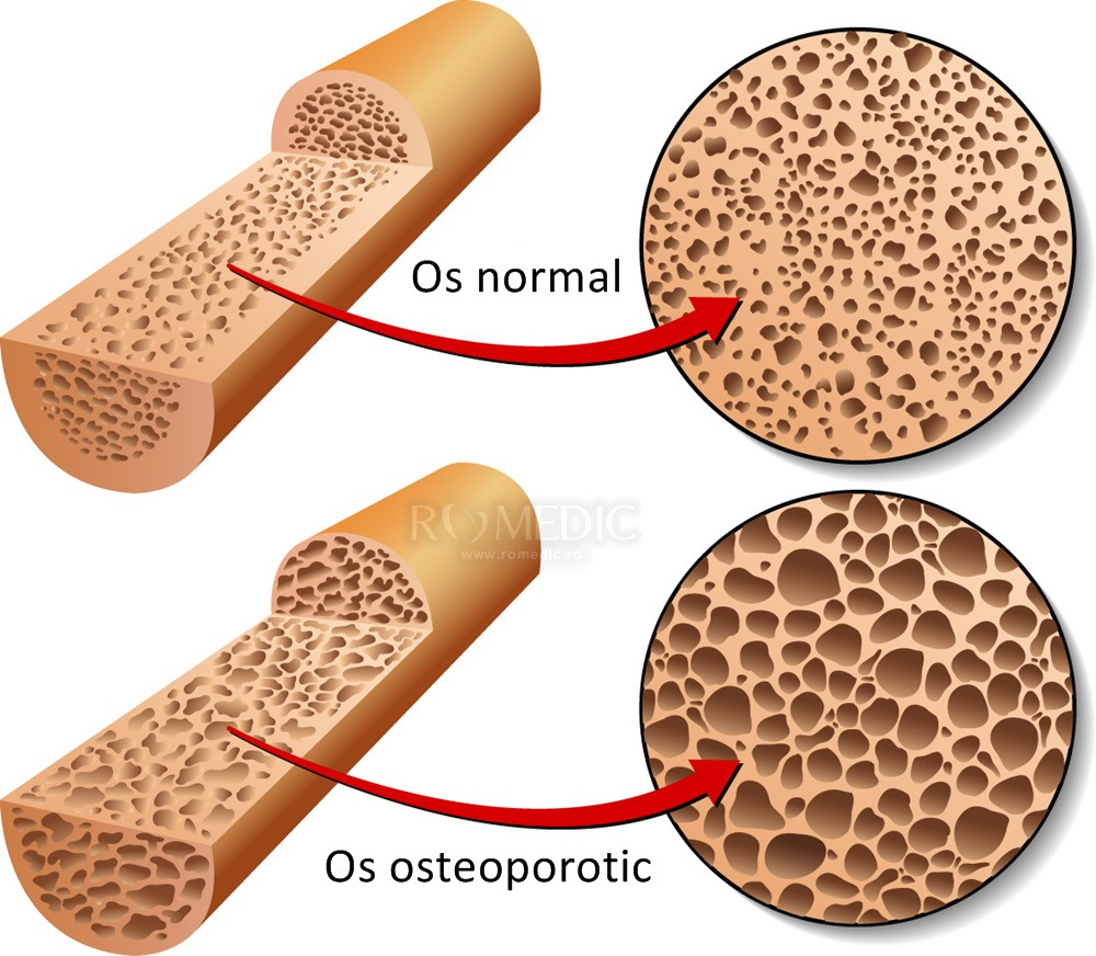 Osteoporoza: simptome, diagnostic, tratament