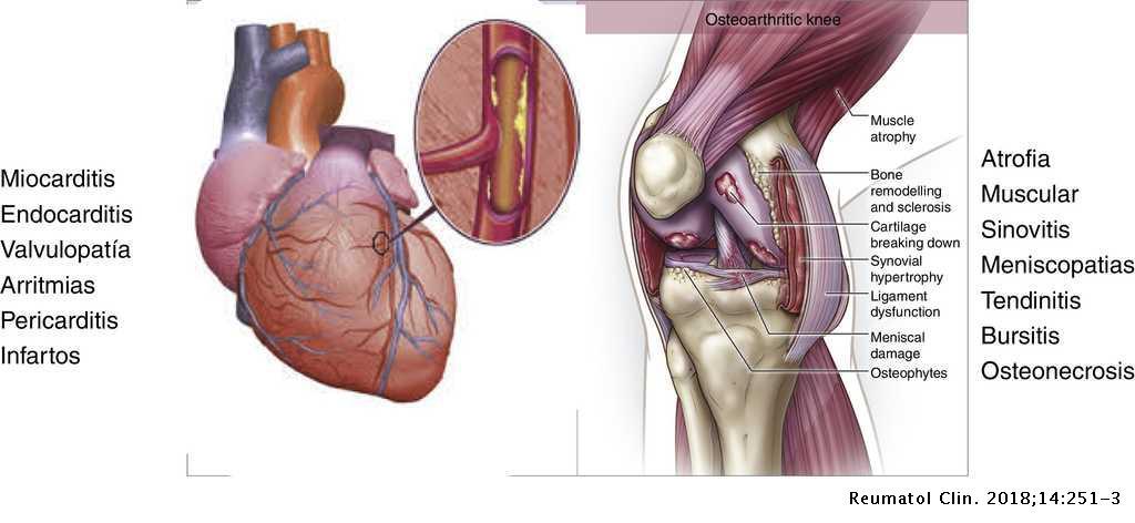 articulații calde cu artroză