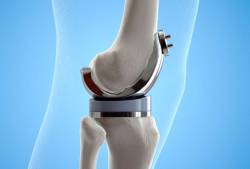 dureri severe după proteze ale genunchiului
