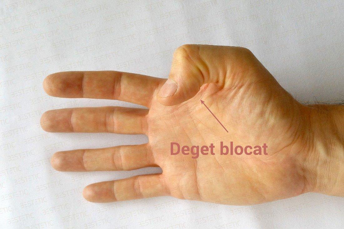 durerile articulare la răcire durerea articulară începe cu mâinile