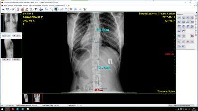 Umăr dislocat - explicații și sfaturi Dislocarea completă a tratamentului articulației umărului