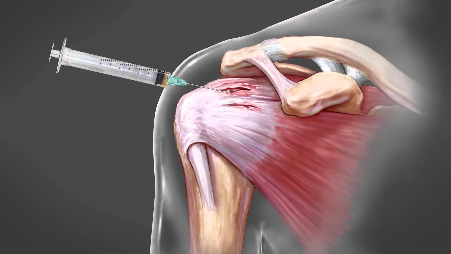 Inflamația latină a umărului homeopatie injecții de durere articulară