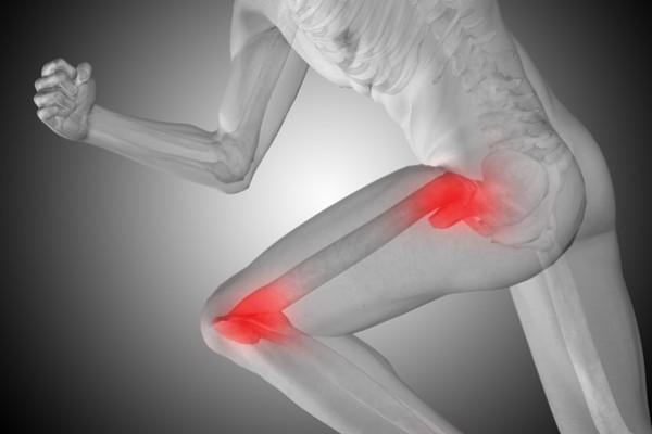 Durerea radiază din articulația șoldului în zona inghinală, Informaţii rapide