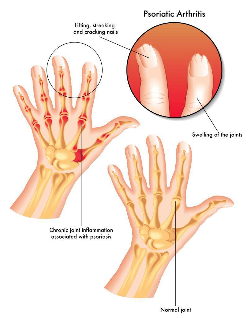 tratamentul artrozei în Transcarpatia cum să îndoiți un genunchi într-o articulație