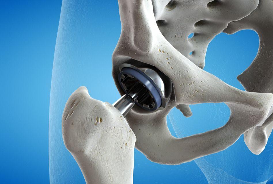 gel și unguent pentru dureri articulare
