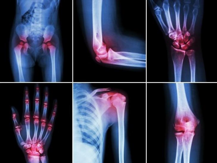 căldură uscată cu artroză a genunchiului