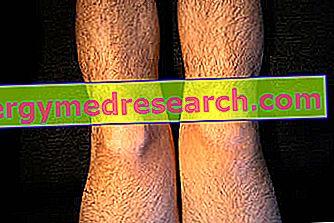 articulația artificială a genunchiului este dureri articulare între picioare