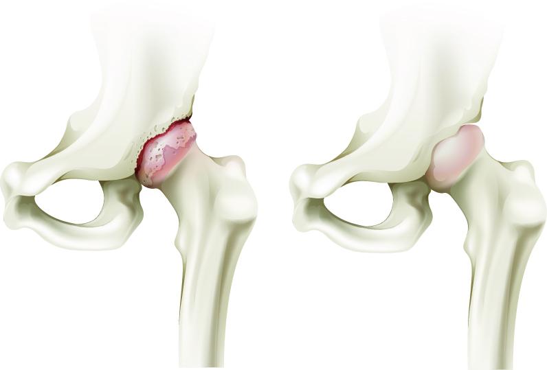 artrita artroso a articulațiilor șoldului simptomele doare articulațiile