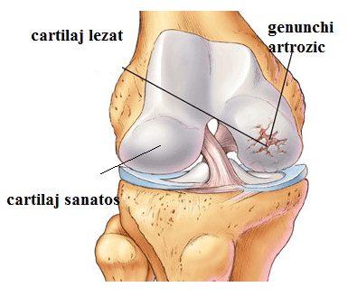 gonartroza și artroza genunchiului articulațiile rănite din vinul roșu