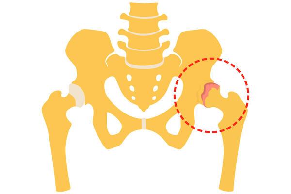 artroză și tratament cu radioterapia sa