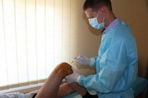 condroxid în tratamentul artrozei artroza tratament cu 3 linguri